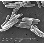 SEM image of Mycobacterium tuberculosis by Janice Carr - released into public domain by CDC