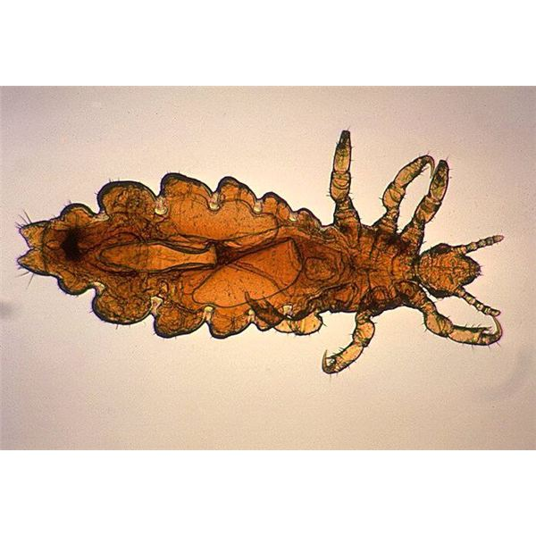 Head Louse - Image Credit: PD-USGOV-HHS-CDC
