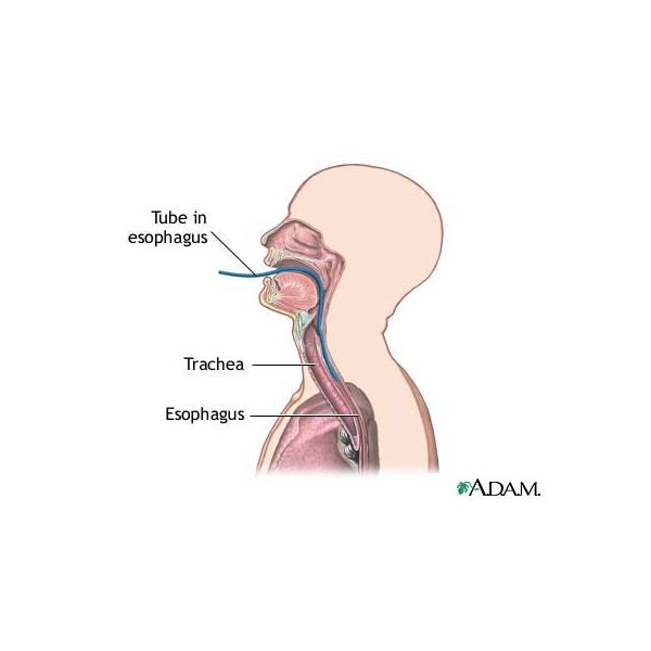 Is Laparoscopic Surgery for Esophageal Cancer an Option for You?