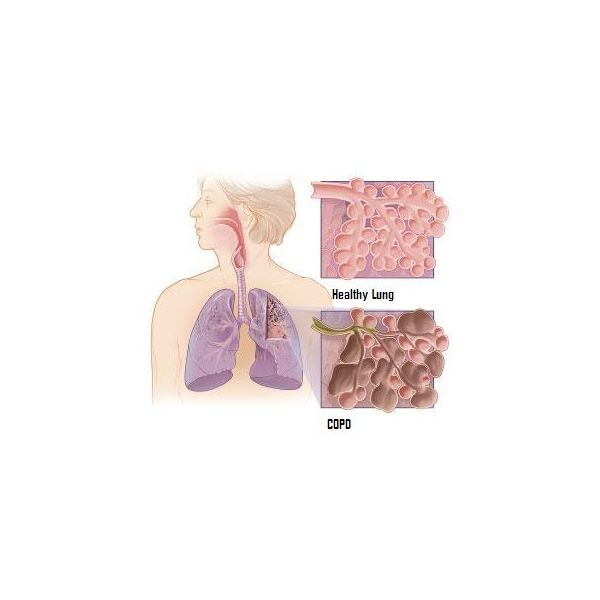 COPD: The Final Stages