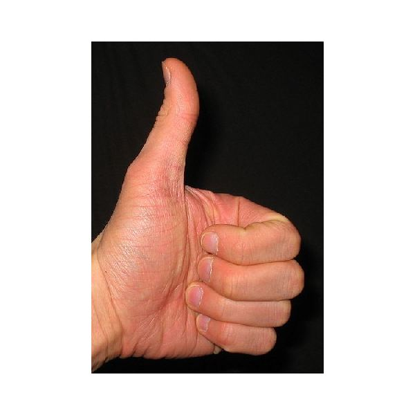 Thumbs Up Wikimedia Commons