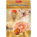 Neurology: Alzheimer's Disease: An Overview iPhone App
