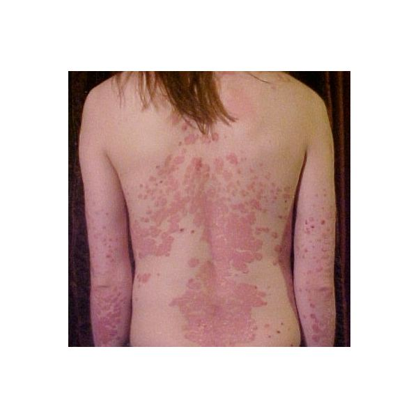 Treating Psoriasis with Essential Oils: A Natural Way to Help Treat and Prevent Outbreaks