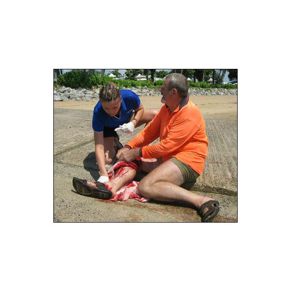 Injuries from Shark Attack