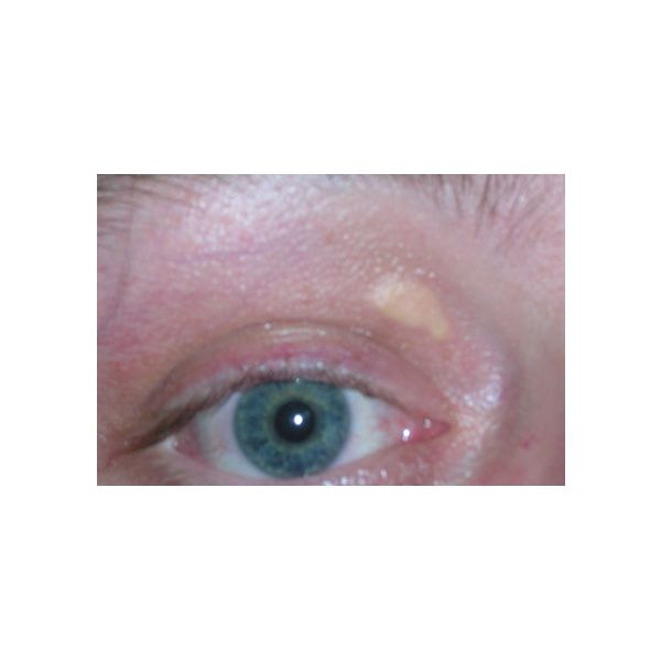 Xanthelasma palpebrarum, yellowish patches consisting of cholesterol deposits above the eyelids. These are more common in people with FH - image released under GNU Free Documentation License