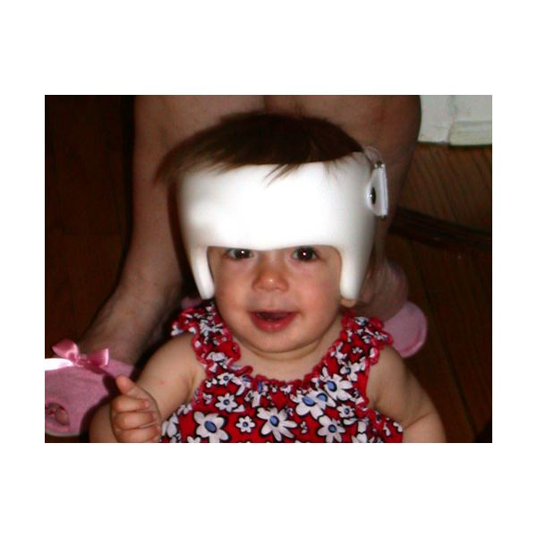 A child with Crouzon syndrome wearing a corrective cranial band - image released into the public domain under GNU Free Documentation License