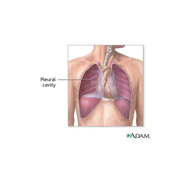Learn about Malignant Pleural Effusion along with Symptoms, Diagnosis, and Treatment