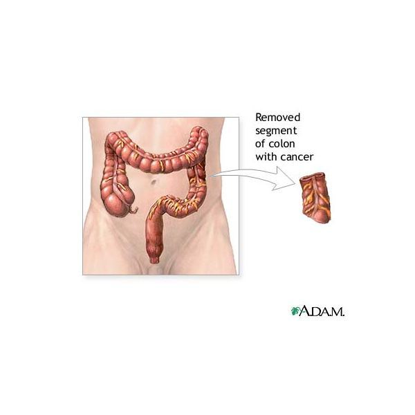 Learn about Laser Treatment for Colon Cancer
