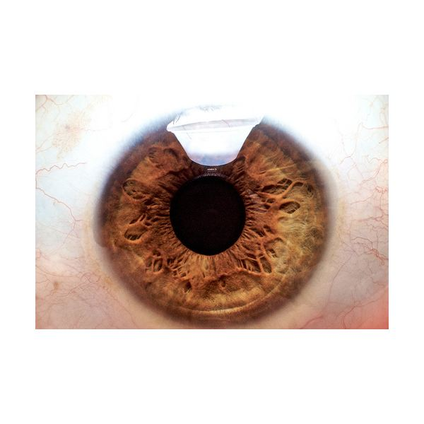 All About Intraocular Melanoma