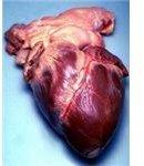 Key Facts on Heart Disease