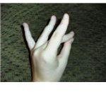 ASL Eighteen Position 1