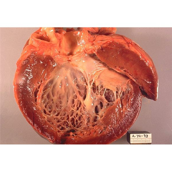 Idiopathic cardiomyopathy - genetic mutations can make some people more susceptible to diseases such as Cardiomyopathy - image released into the public domain by Centers for Disease Control and Prevention