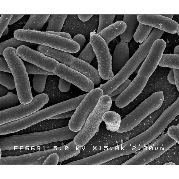The Escherichia coli - Photo courtesy of the National Institute of Allergy and Infectious Diseases