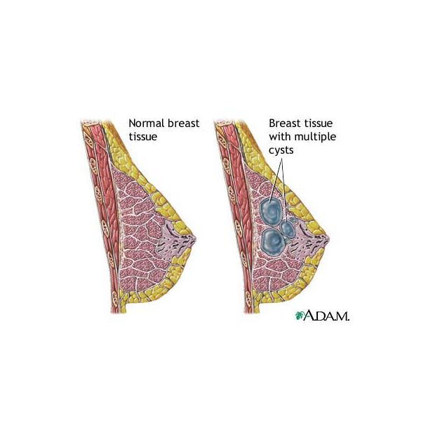 What is Fibrocystic Breast Disease?