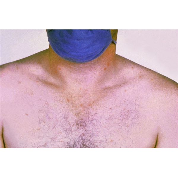 Rose spots on the chest of a patient with typhoid fever - image released into the public domain by the US Federal Govt.