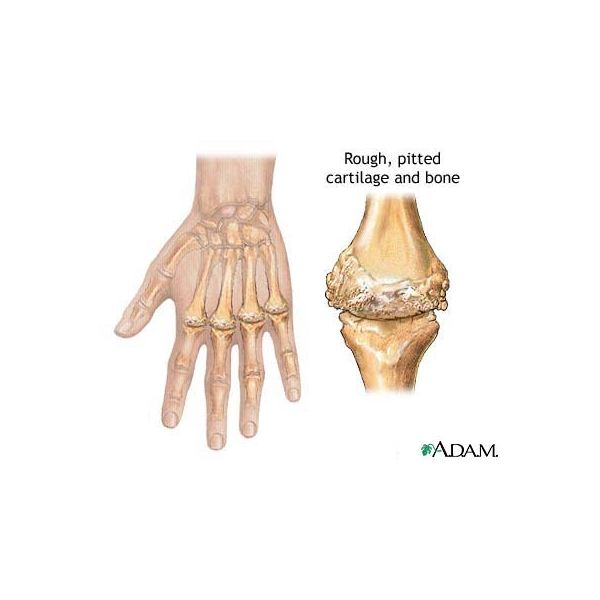 Rheumatoid Arthritis - Image courtesy of the National Library of Medicine (NLM)