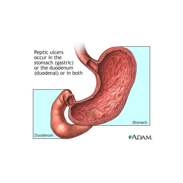 Find a Natural Peptic Ulcer Treatment