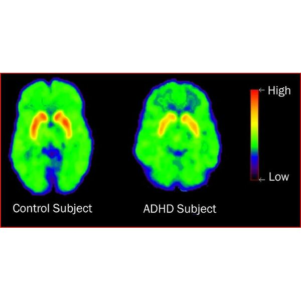 What Does ADHD do the Brain? The Results of Research and Brain Scan Imaging