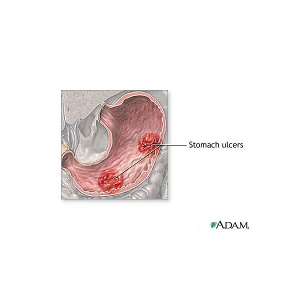 What is the Cause of Stomach Ulcer Symptoms?