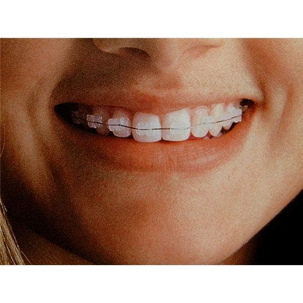 How Much do Braces Cost on an Average? Learn the Average Cost of Braces Based on Styles