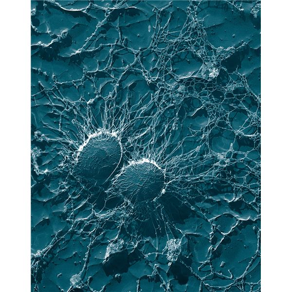 Staphylococcus aureus, 50,000x - image released into the public domain by the United States Department of Agriculture