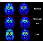 PET scan of normal brain & brain with Parkinson's disease.